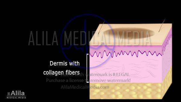 Laser Skin Resurfacing surgery video.