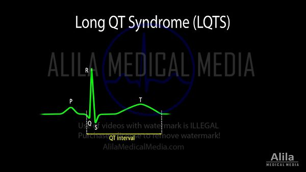 Long QT Syndrome and Torsades de Pointes NARRATED animation