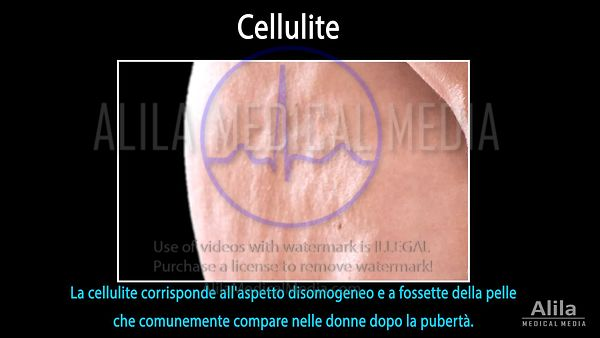 Sottotitoli in ITALIANO. Cellulite