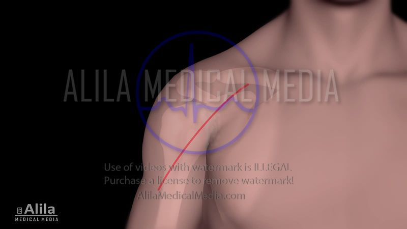 Shoulder ream and run surgery animation.