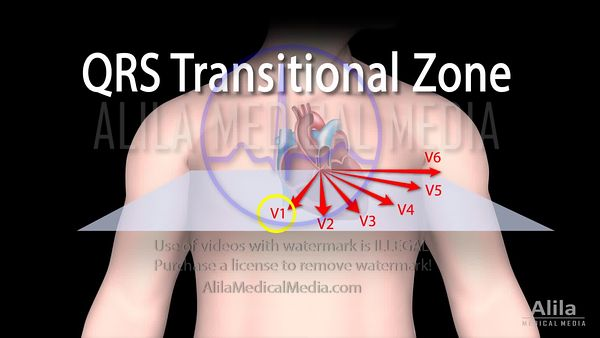 QRS transitional zone in chest leads, NARRATED animation.