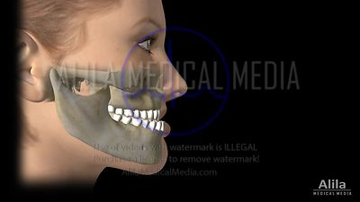 Le Fort 1 Maxillary advancement surgery animation