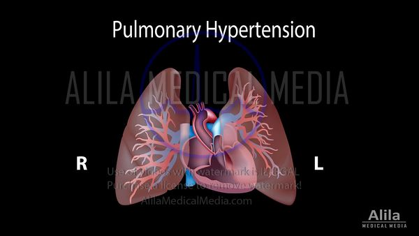 Pulmonary hypertension NARRATED animation