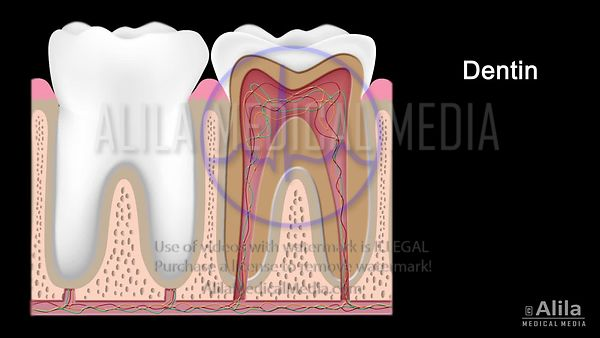 Caries dental, animación