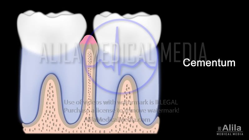 Periodontal disease video