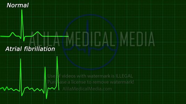 Atrial fibrillation ecg loop labeled video.