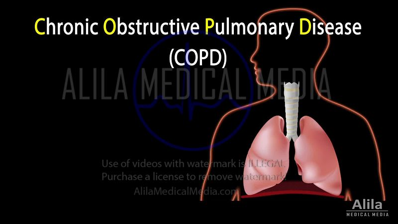 Chronic obstructive pulmonary disease (COPD) NARRATED animation.