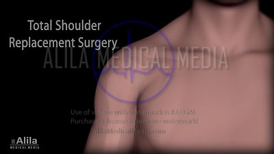 Surgical options for shoulder arthritis NARRATED animation