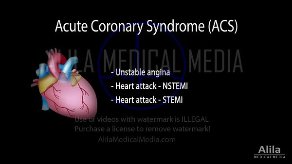 Acute coronary syndrome (ACS): Unstable angina, NSTEMI and STEMI, NARRATED animation