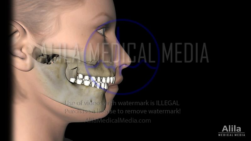 Mandibular advancement jaw surgery animation