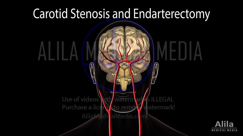 Carotid stenosis and endarterectomy NARRATED animation.
