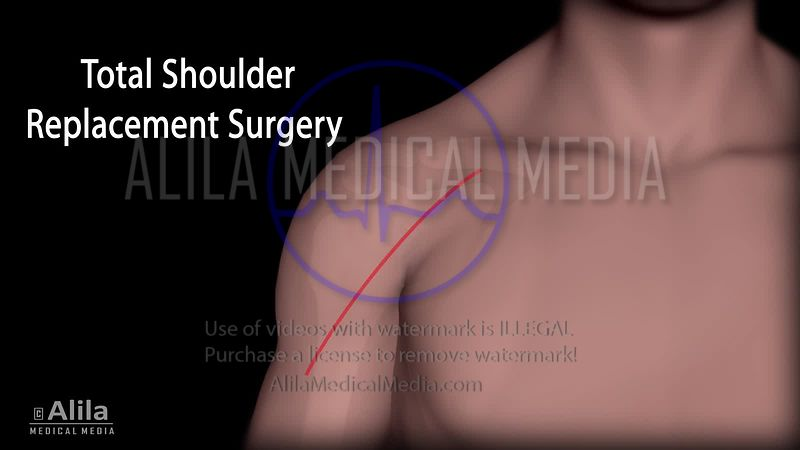 Total shoulder and Ream&Run surgeries NARRATED animation
