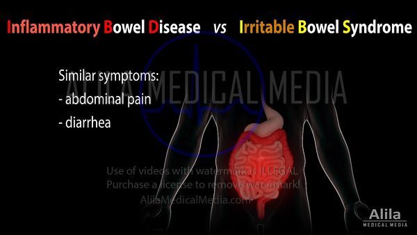 Inflammatory bowel disease vs Irritable bowel syndrome, NARRATED animation