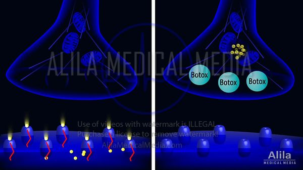 Mechanism of action of Botox animation.