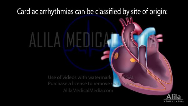 Cardiac arrhythmias narrated FULL video