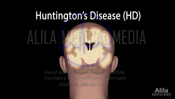 Huntington's disease NARRATED animation