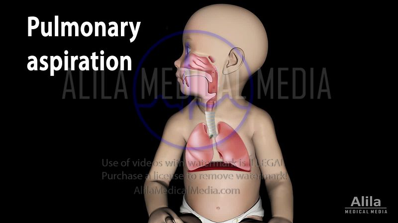 Pulmonary aspiration (in a baby), with lungs shown