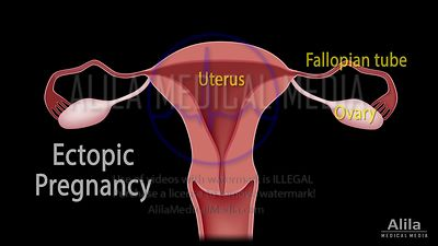 Ectopic pregnancy NARRATED animation