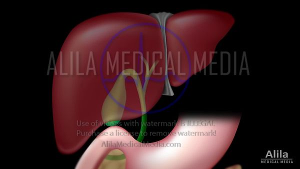 Gallstones and Cholecystectomy animation.