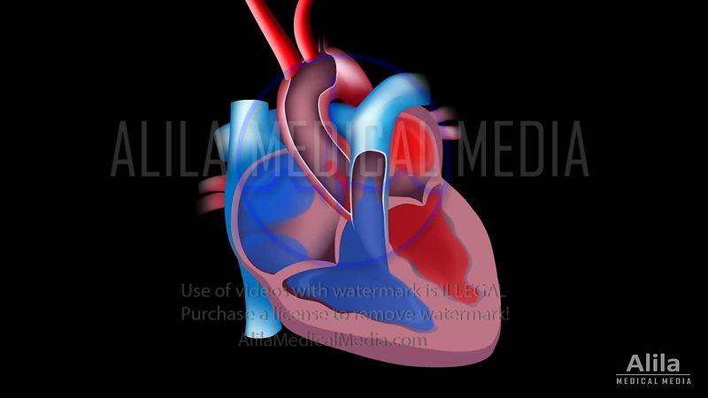 Atrial fibrillation and stroke, animation.
