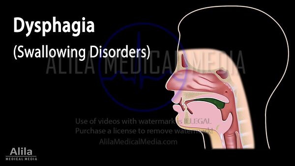 Dysphagia NARRATED animation