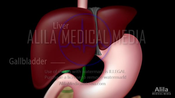 Gallstones and surgery NARRATED animation.