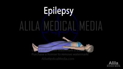 Epilepsy, seizures NARRATED animation., PART 1