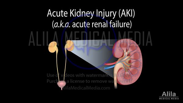 Acute kidney injury (AKI) NARRATED animation