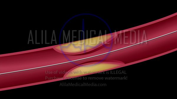 Stent angioplasty procedure video