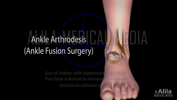 Ankle fusion surgery NARRATED animation.