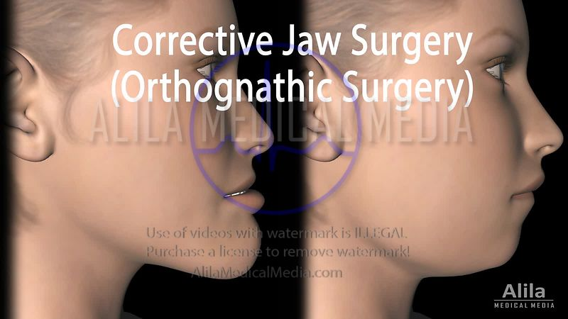 Corrective jaw surgeries NARRATED animation.
