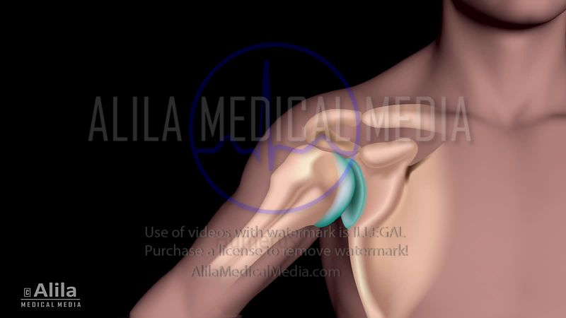 Shoulder arthritis NARRATED animation.