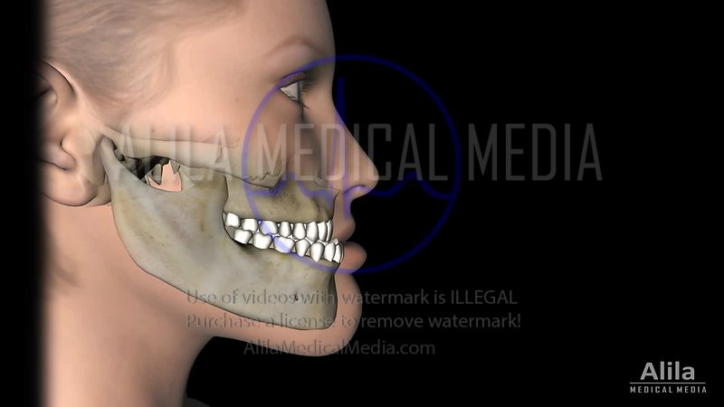 Mandibular setback jaw surgery animation
