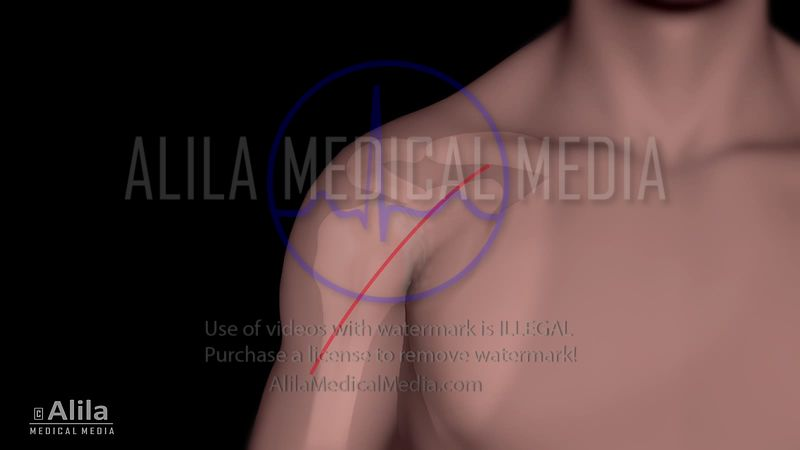 Total shoulder replacement animation.