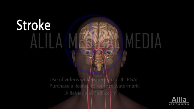 Brain stroke NARRATED animation