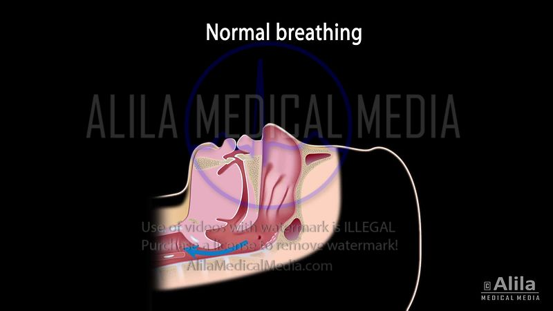 Snoring and sleep apnea video with sound