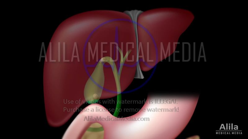 Gallstone complications animation