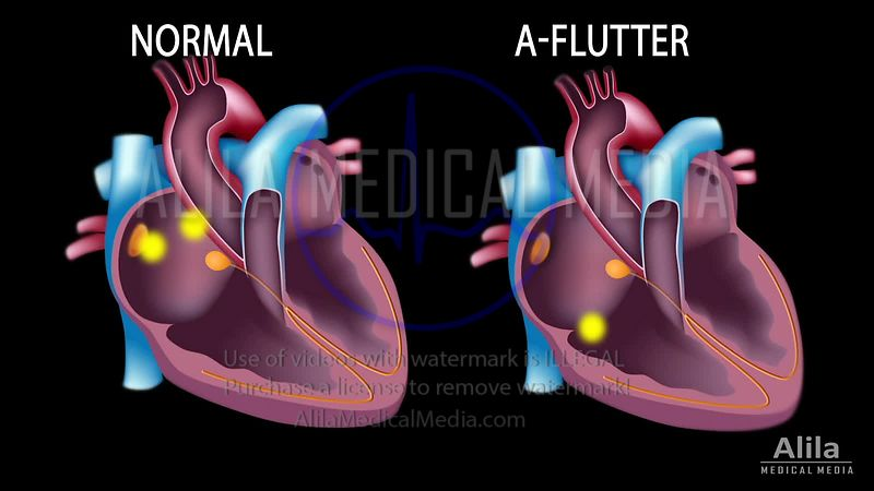 Atrial flutter vs normal sinus rhythm