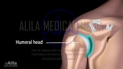 Bankart labral tear repair NARRATED video