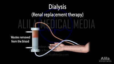 Renal replacement therapy: hemodialysis vs peritoneal dialysis NARRATED animation