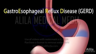 Gastric reflux (GERD) NARRATED animation.