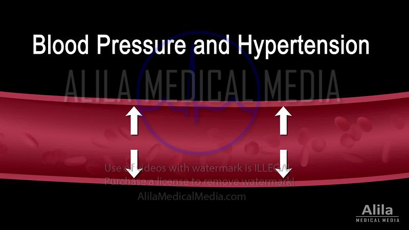 Hypertension NARRATED animation