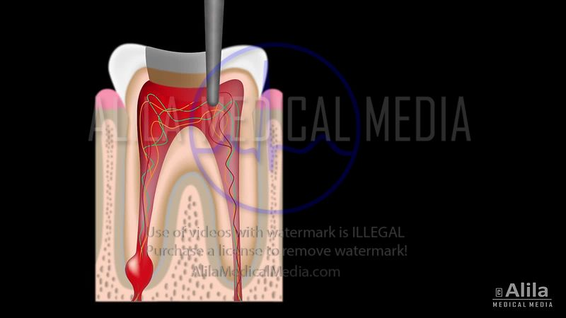 Root canal treatment video.