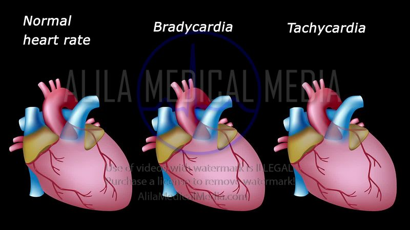 Bradycardia and tachycardia video