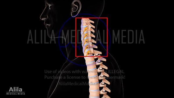 Cervical medial branch block video.
