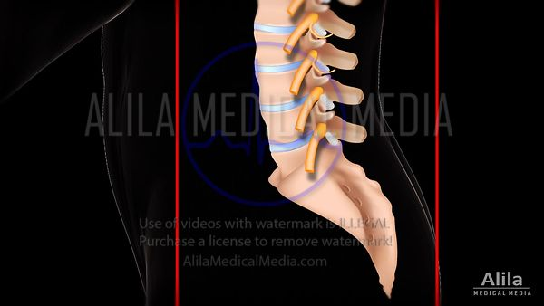 Caudal epidural injection video.