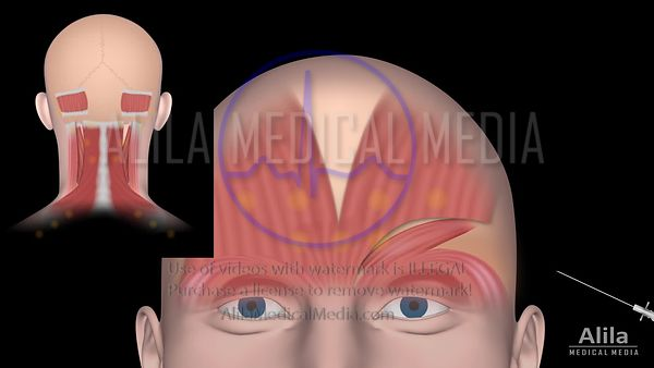 Botox injection for migraine, animation