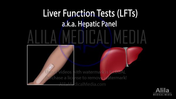 Liver function tests NARRATED animation