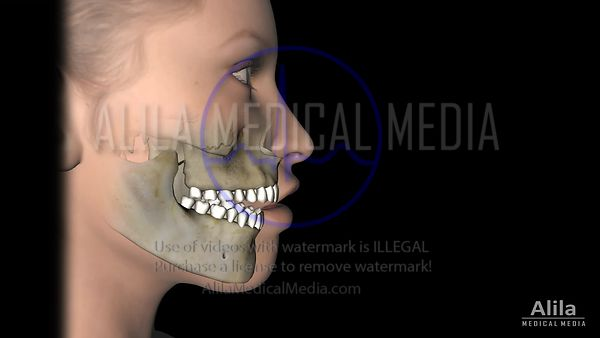 Corrective jaw surgery for open bite, animation