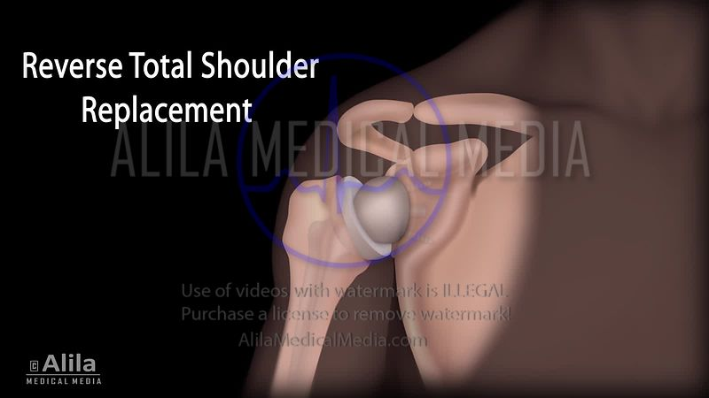 Reverse total shoulder vs Conventional surgery, NARRATED animation